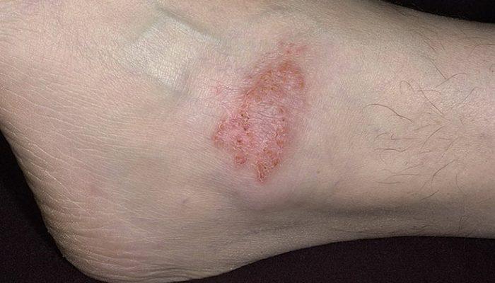 герпес на ноге