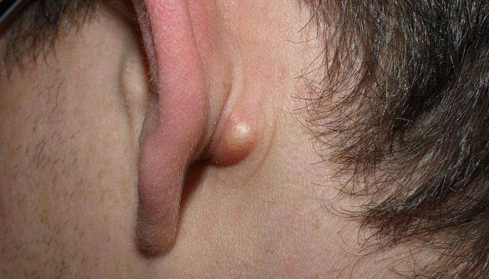 Атерома ушной раковины: фото и лечение кисты и воспаления сальных желез на ухе и за ухом