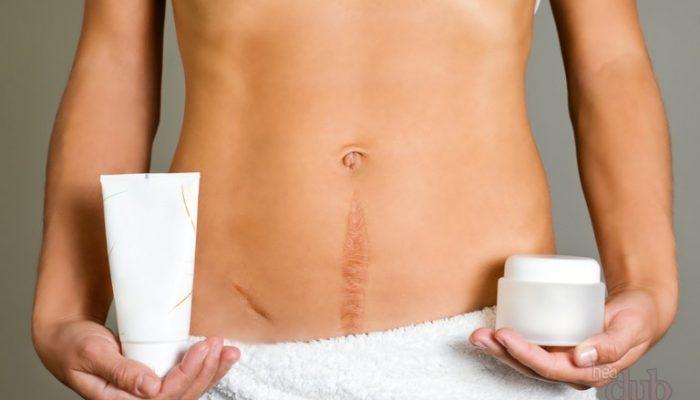 Олеогранулема послеоперационного рубца молочной железы