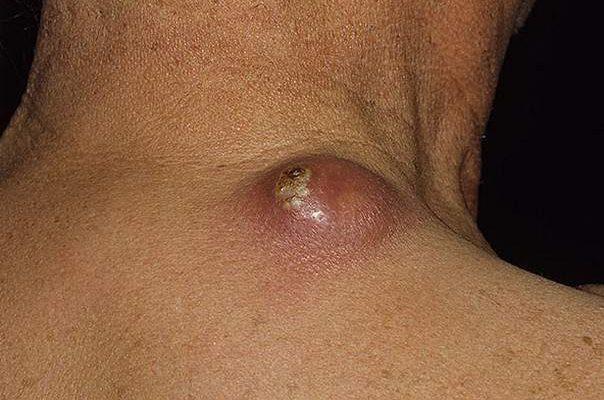 Фурункул на шее лечение в домашних условиях