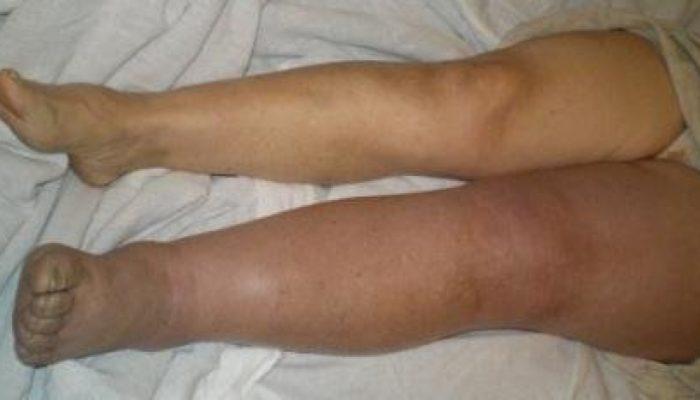 Почему синеют ноги у взрослого