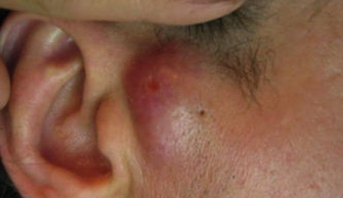 Шишка на челюсти возле уха
