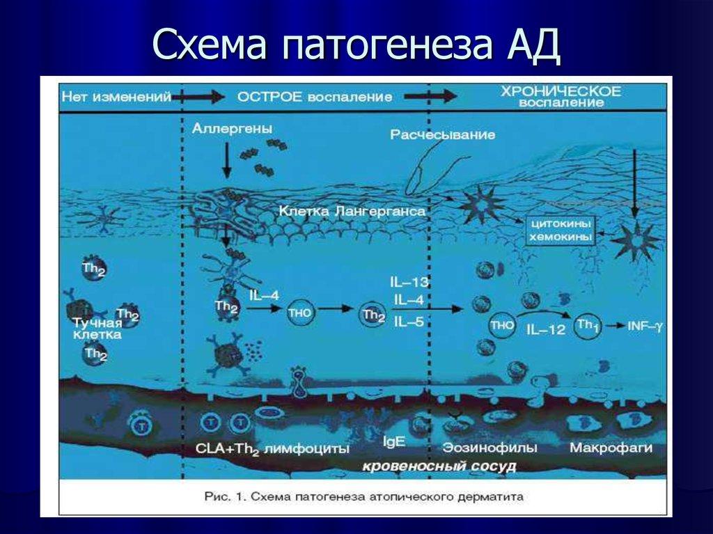 Этиология патогенез атопического дерматита thumbnail