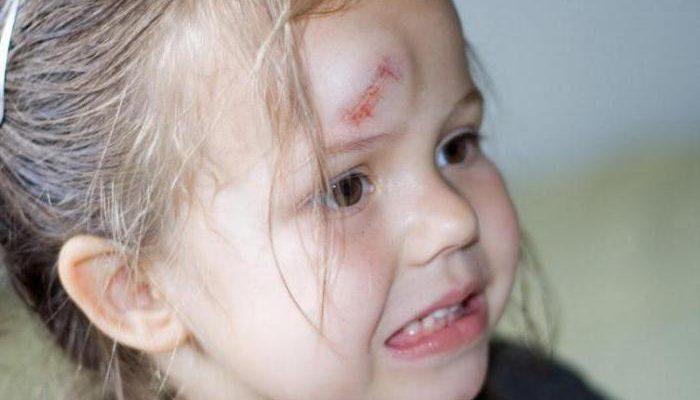 Гематома на голове после ушиба симптомы лечение и последствия