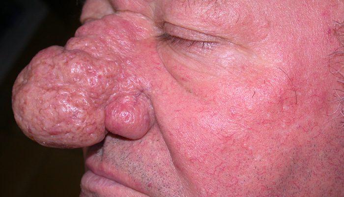 Что такое ринофима носа: возникновение и лечение заболеания