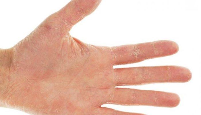 Почему чешутся руки 29