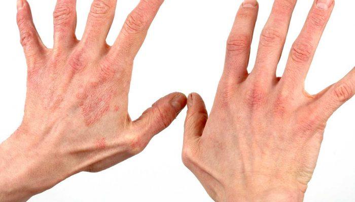 Сильно чешется рука от кисти до локтя