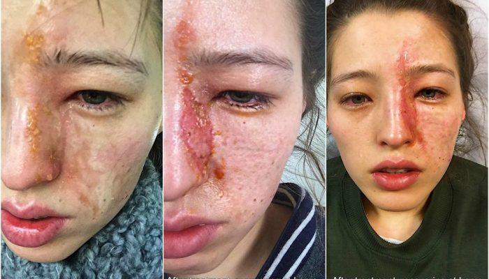 Чем лечить химический ожог на лице