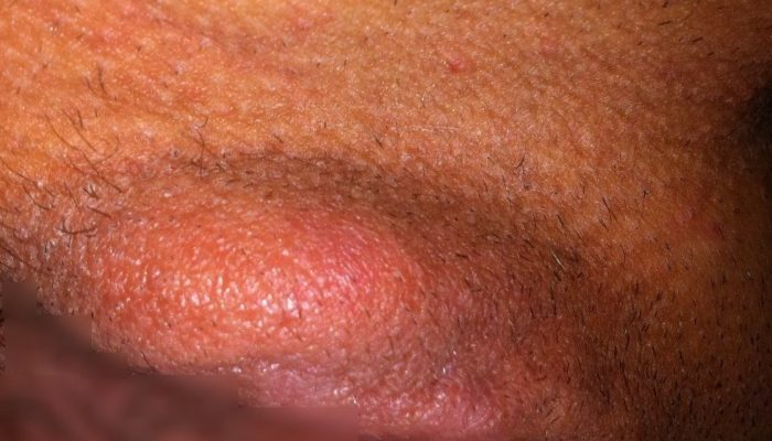 Фурункул на лобковой части у женщин фото